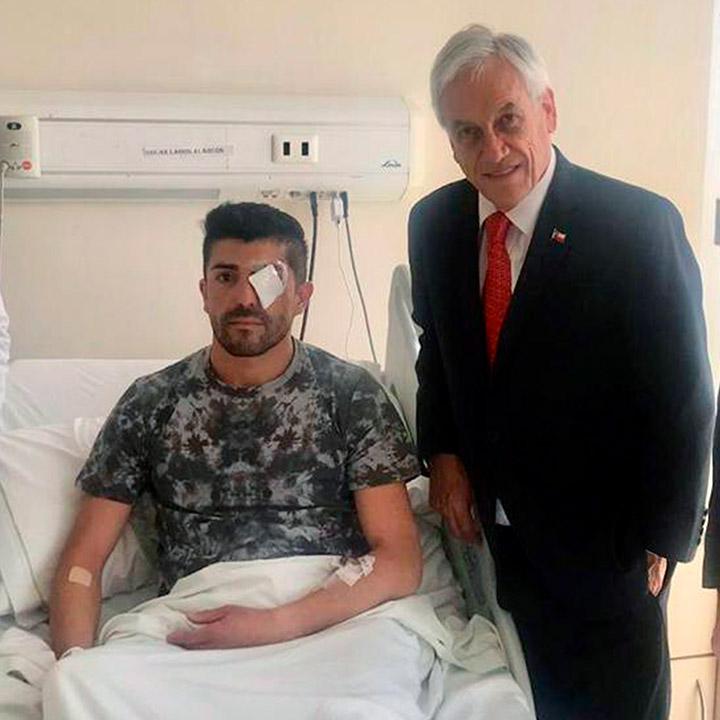 Piñera visita a herido con grave lesión ocular