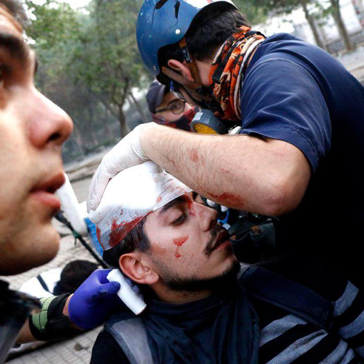Reportan 2.381 personas heridas en hospitales: 217 con daños oculares